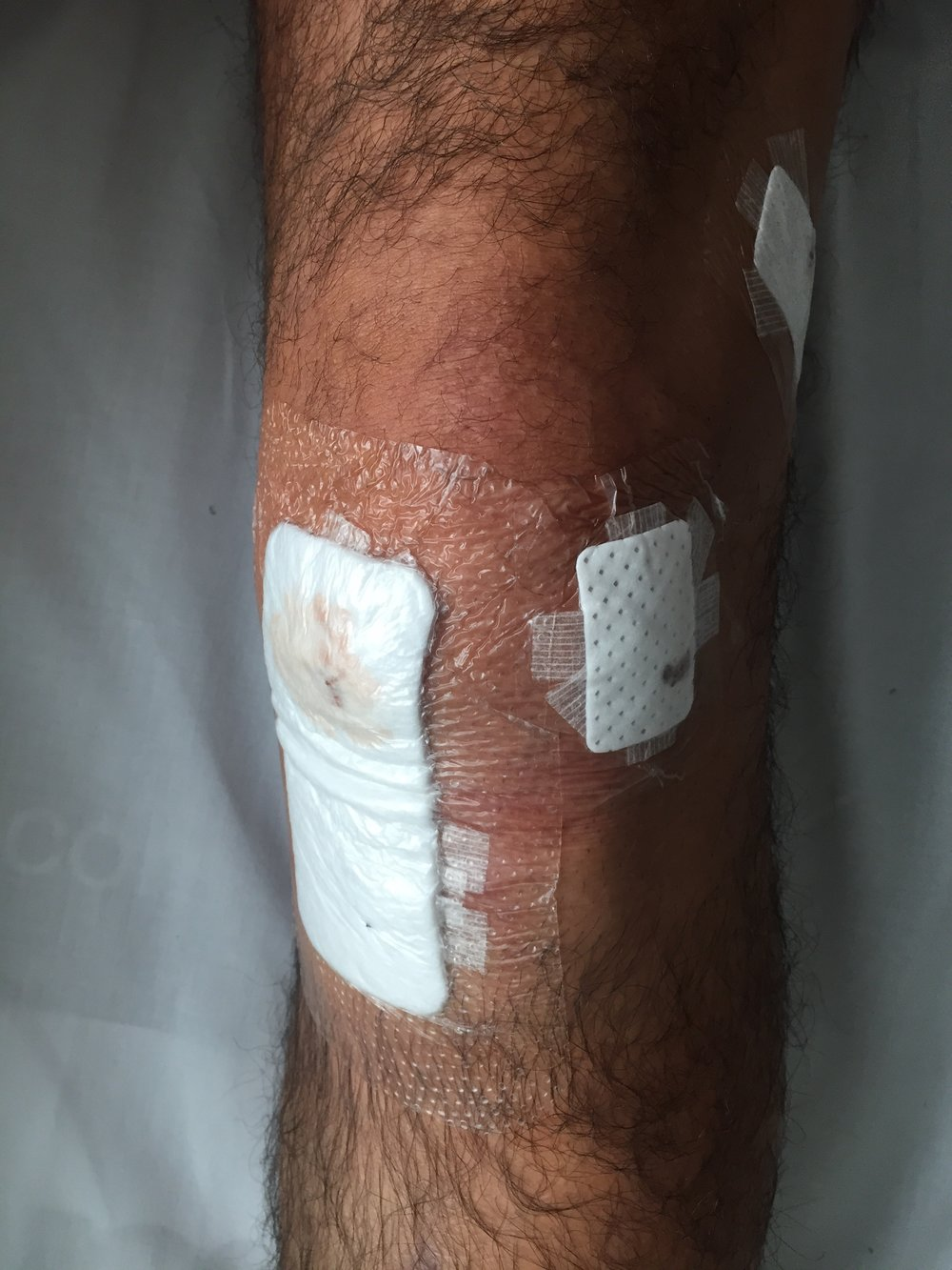 My knee, immediately after surgery (March 2017)